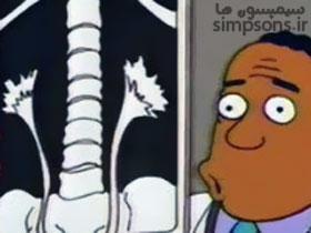 مشکل کلیویِ هومر سیپسون